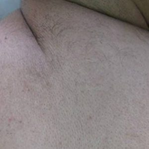 Clinical Magma Hair Removal After Treatment