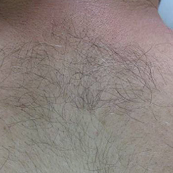 Clinical Magma Hair Removal Before Treatment