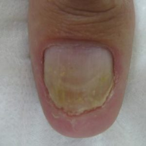 Clinical Nail Fungus After Treatment