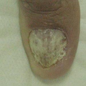 Clinical Nail Fungus Before Treatment