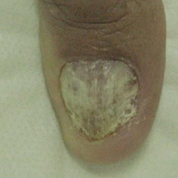 Clinical Nail Fungus Before Treatment