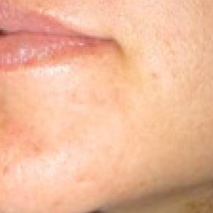 Clinical Needling Mouth Before and After