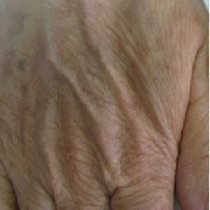Clinical Magma Pigment Lesions After Treatment