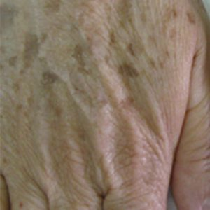 Clinical Magma Pigment Lesions Before Treatment