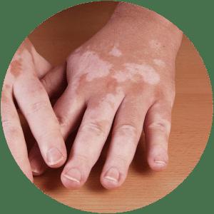 Pigmentation & Vascular