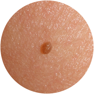 Skin Tags & Lesions