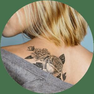 Tattoo Removal & Cosmetic Tattoos